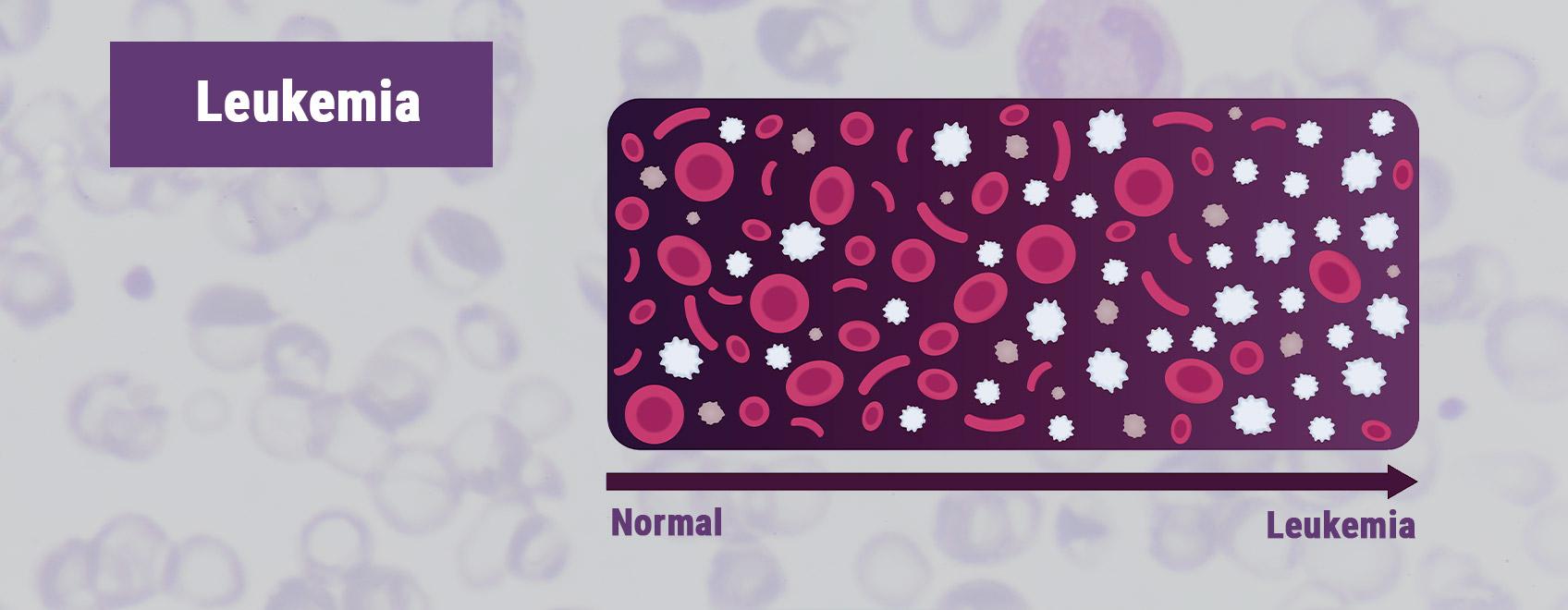 Leukémie