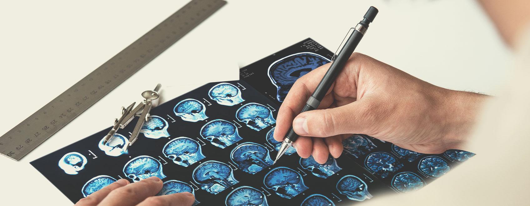 Typy Roztroušené Sklerózy